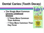 dental caries tooth decay
