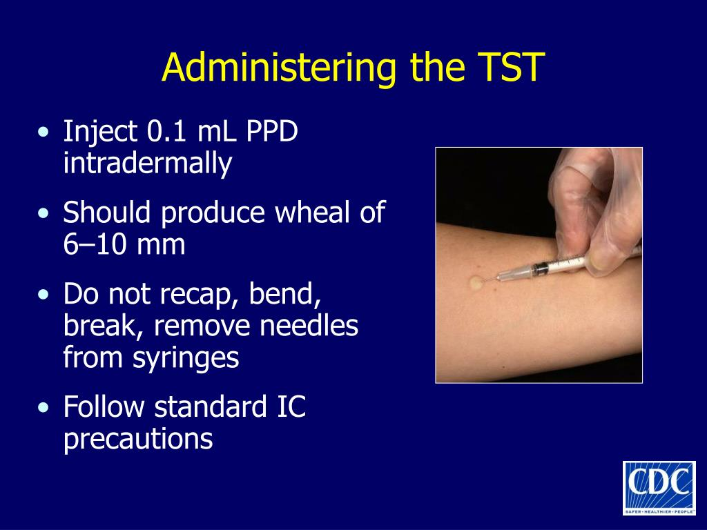Administering the TST