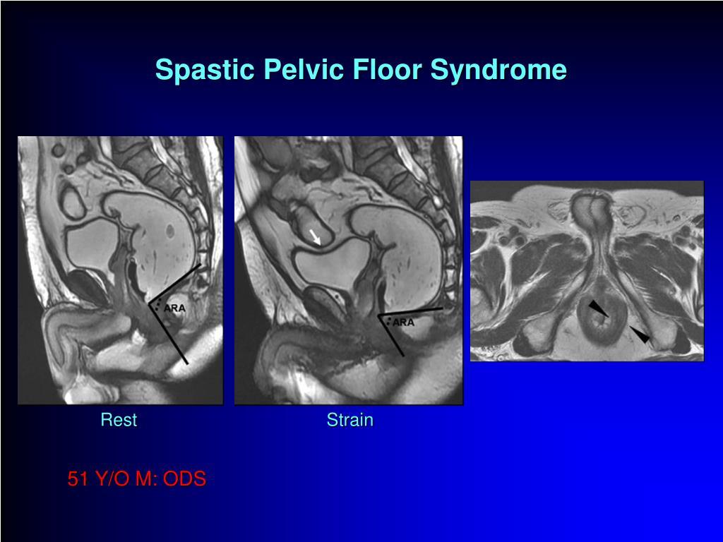 Ppt Mri In Pelvic Floor Disorders Powerpoint