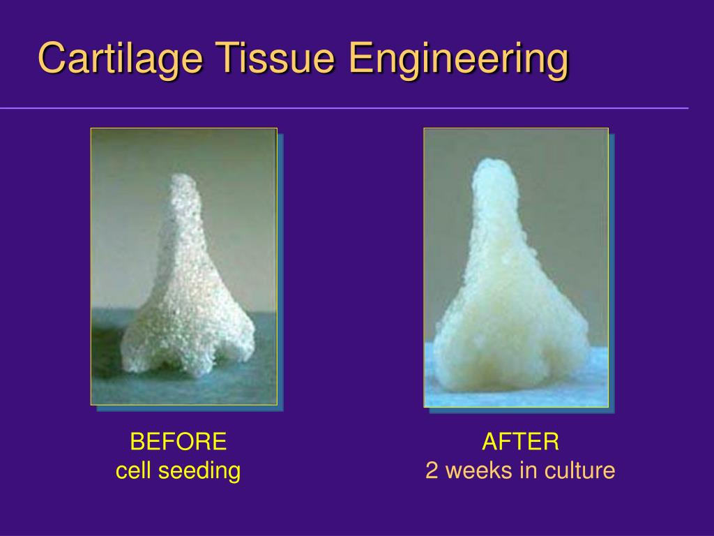 Cartilage Tissue Engineering