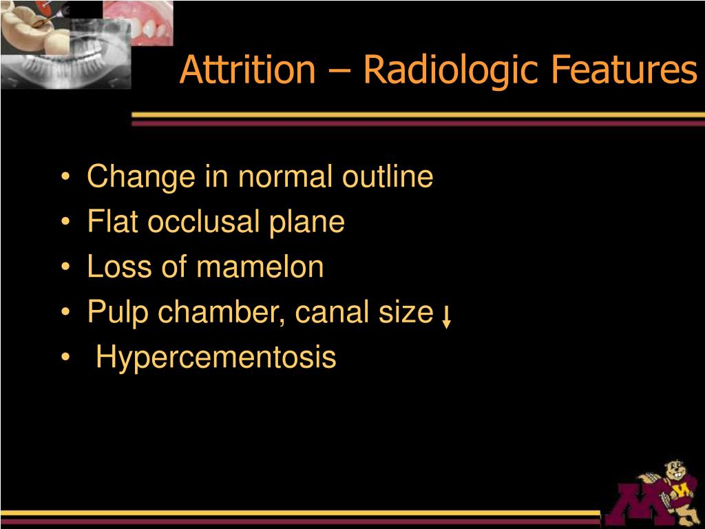 Attrition – Radiologic Features