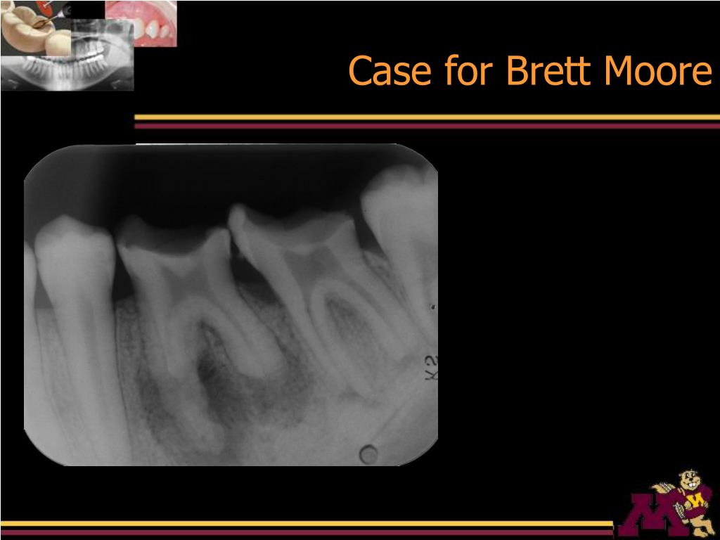 Case for Brett Moore