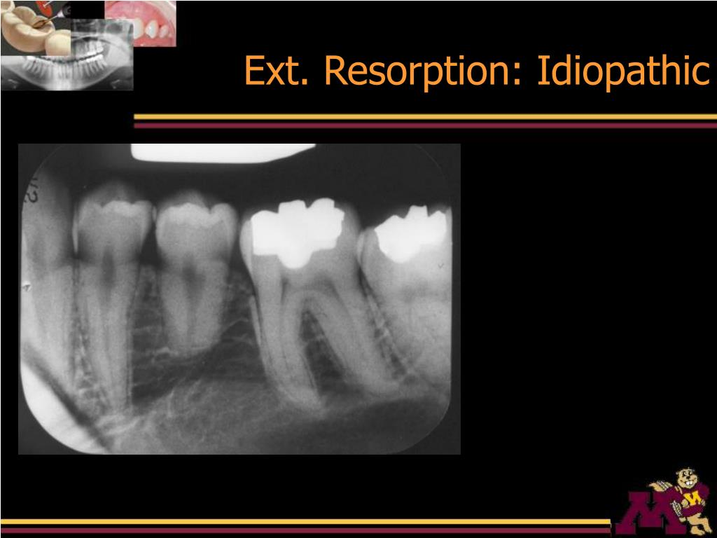 Ext. Resorption: Idiopathic