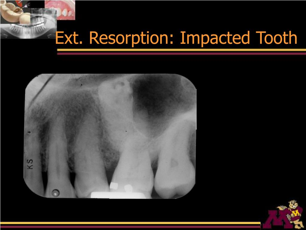 Ext. Resorption: Impacted Tooth