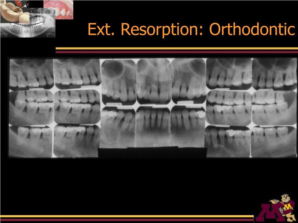 Ext. Resorption: Orthodontic