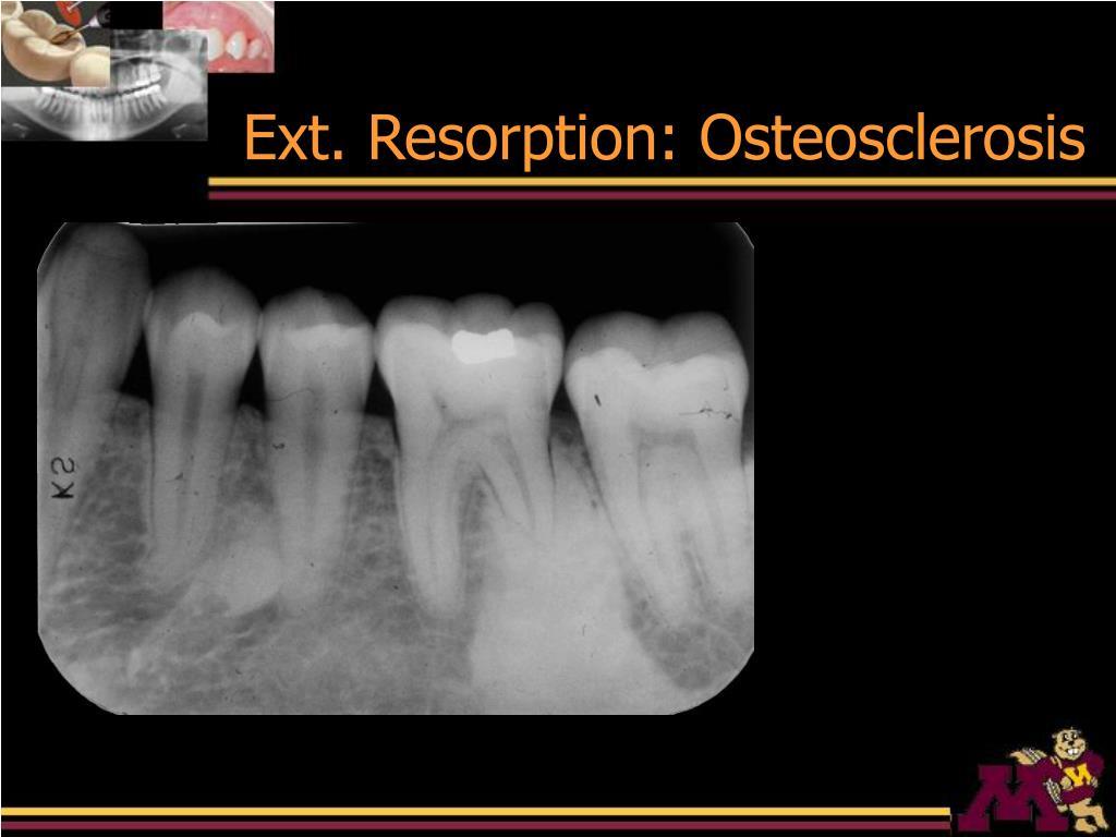 Ext. Resorption: Osteosclerosis