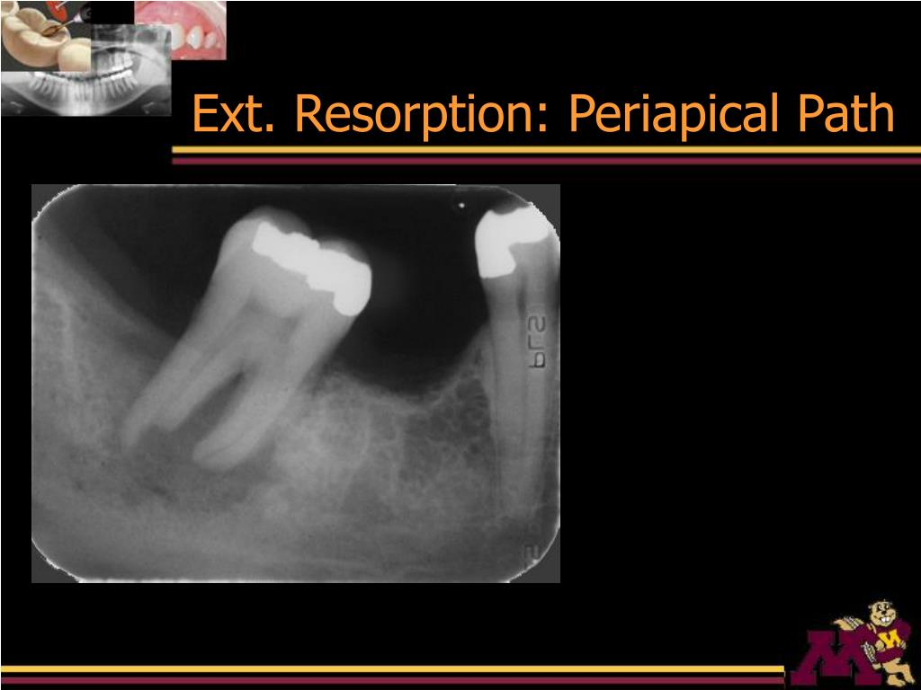 Ext. Resorption: Periapical Path