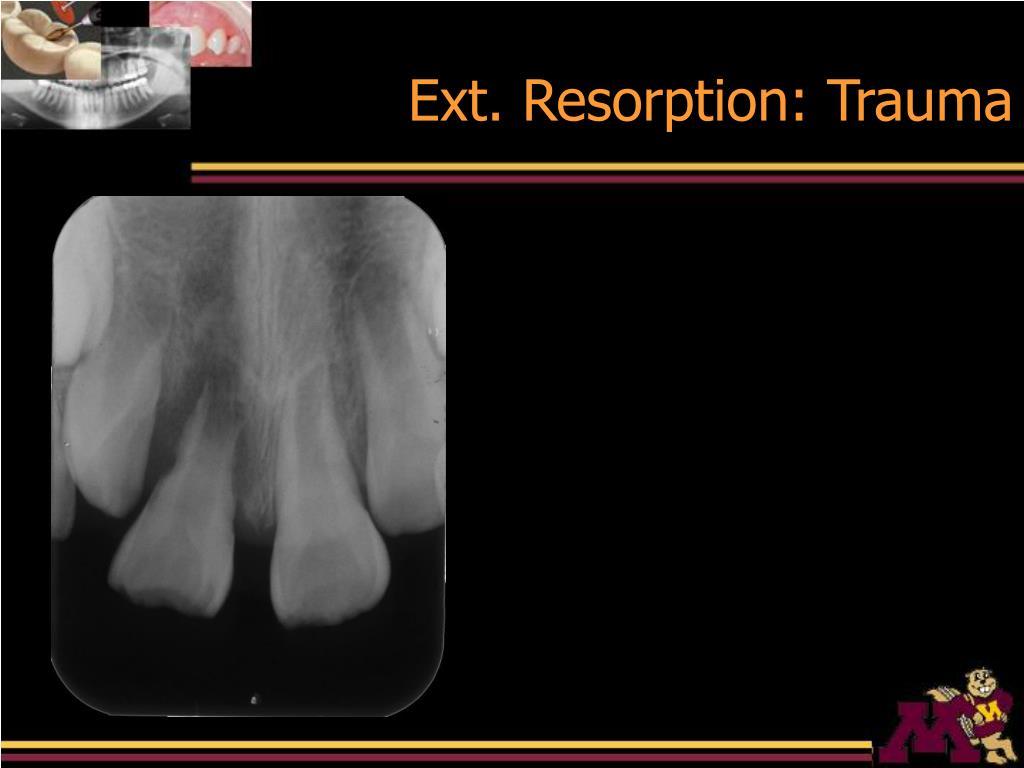 Ext. Resorption: Trauma