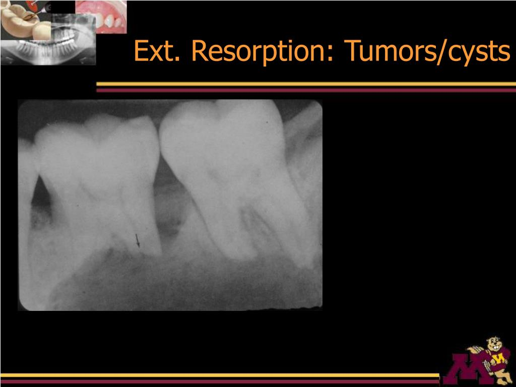 Ext. Resorption: Tumors/cysts