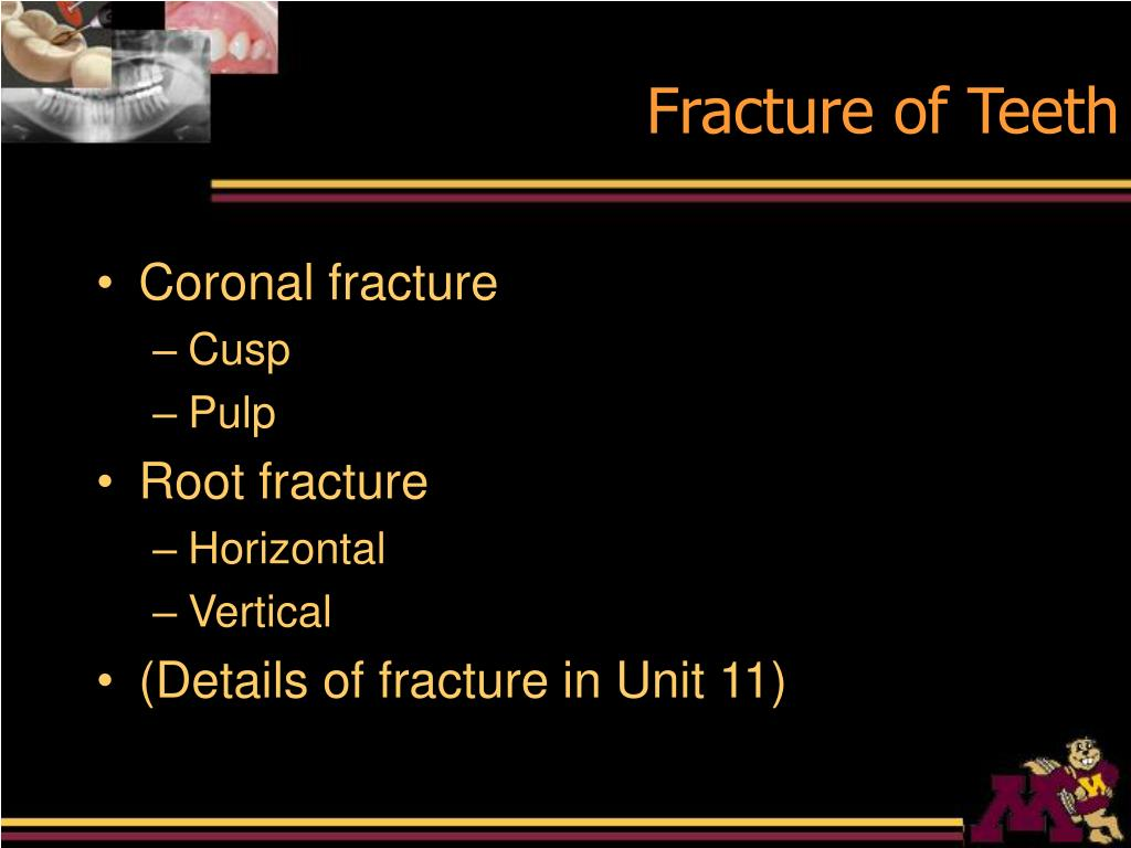 Fracture of Teeth