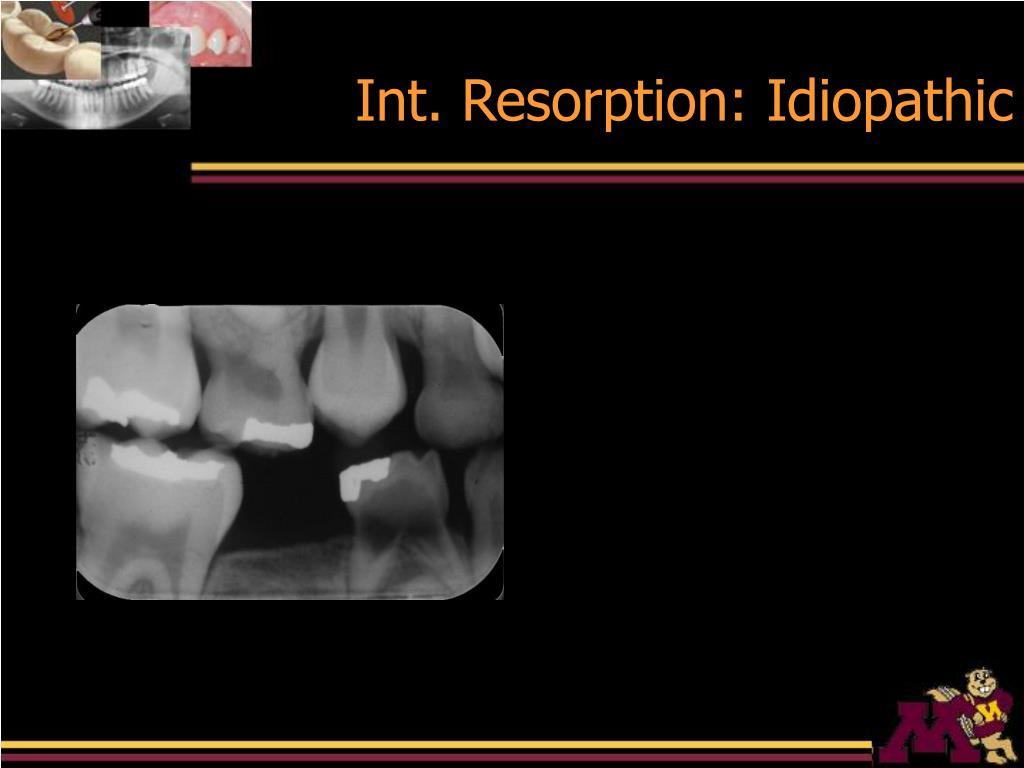 Int. Resorption: Idiopathic