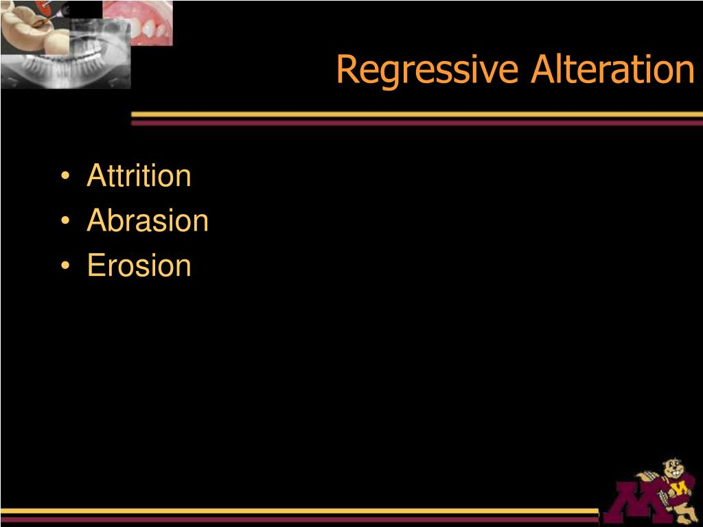 Regressive Alteration