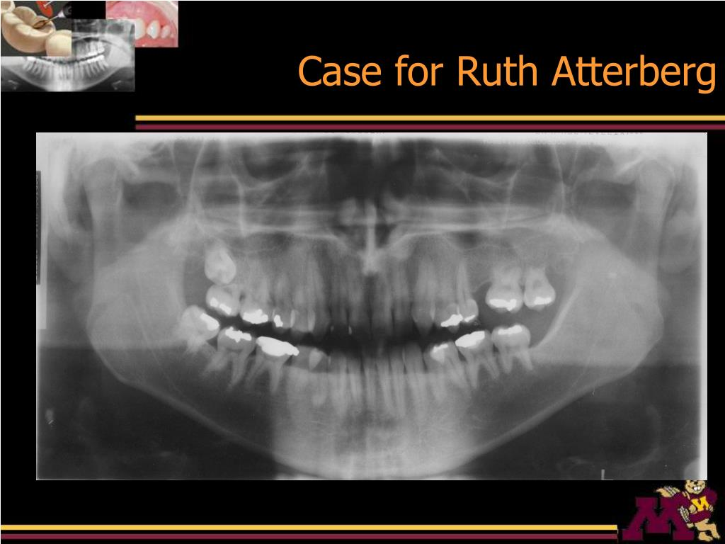 Case for Ruth Atterberg