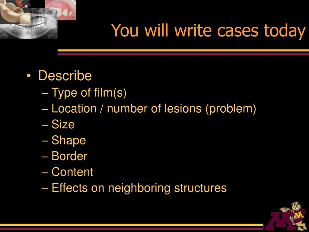 You will write cases today