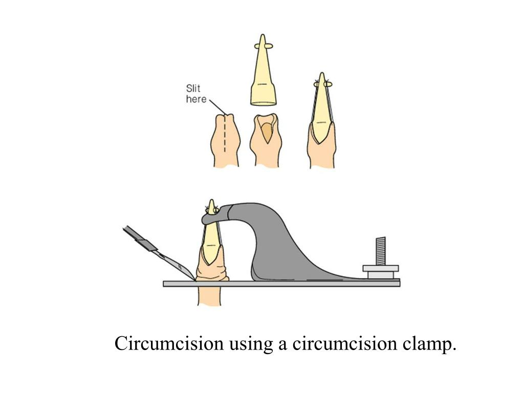 Circumcision using a circumcision clamp.