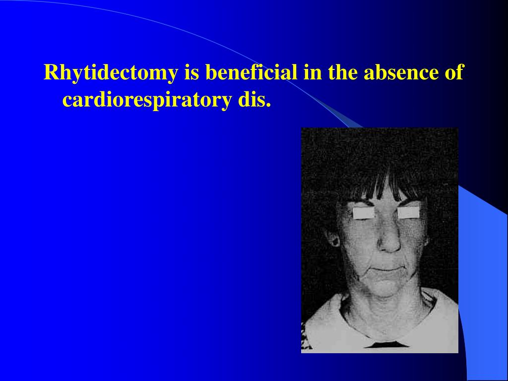 Rhytidectomy is beneficial in the absence of cardiorespiratory dis.