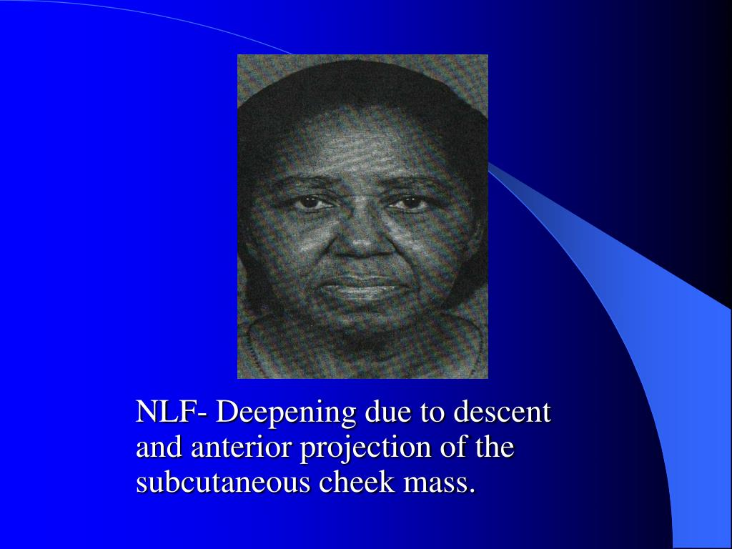NLF- Deepening due to descent and anterior projection of the subcutaneous cheek mass.
