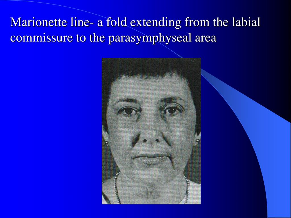 Marionette line- a fold extending from the labial commissure to the parasymphyseal area
