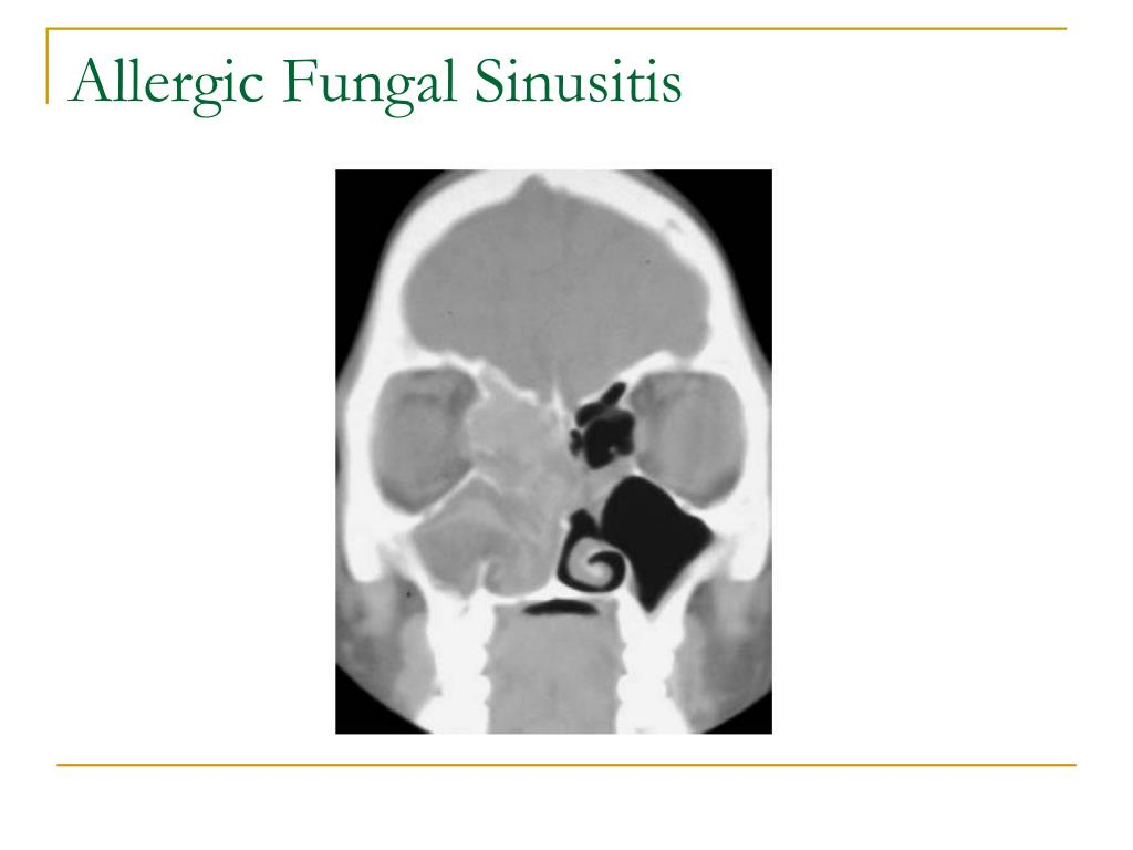 Allergic Fungal Sinusitis