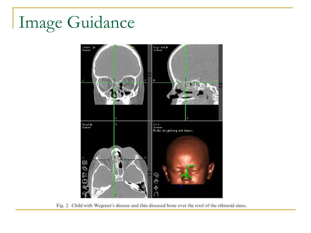 Image Guidance