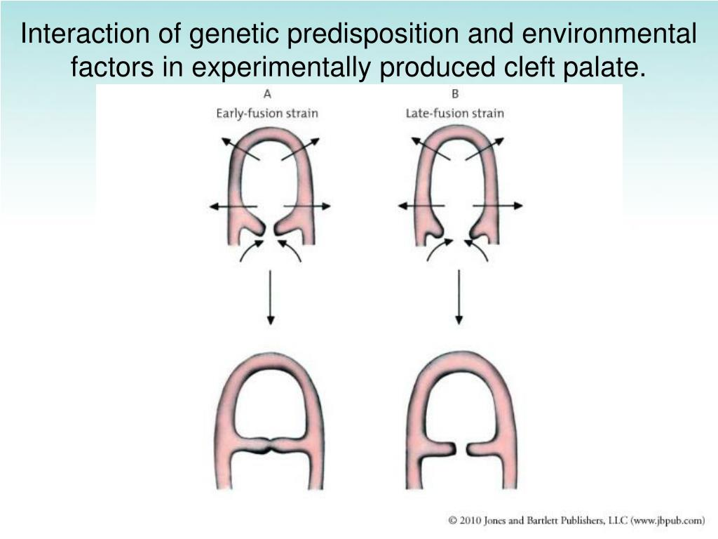 Interaction of genetic predisposition and environmental factors in experimentally produced cleft palate.