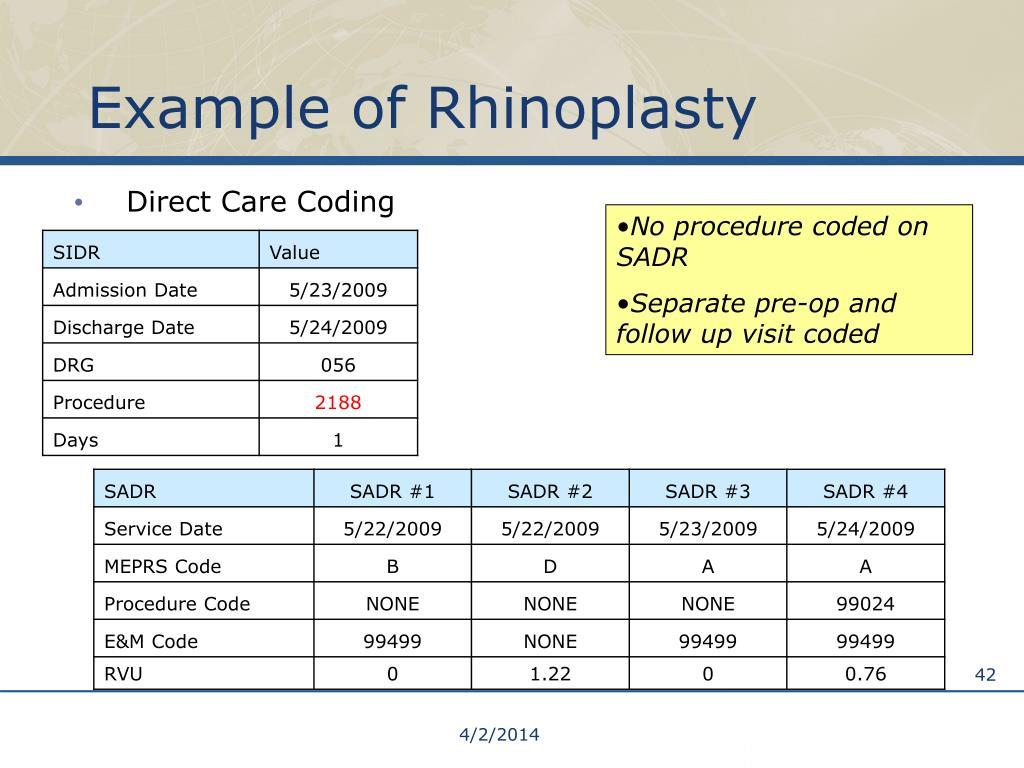 Example of Rhinoplasty