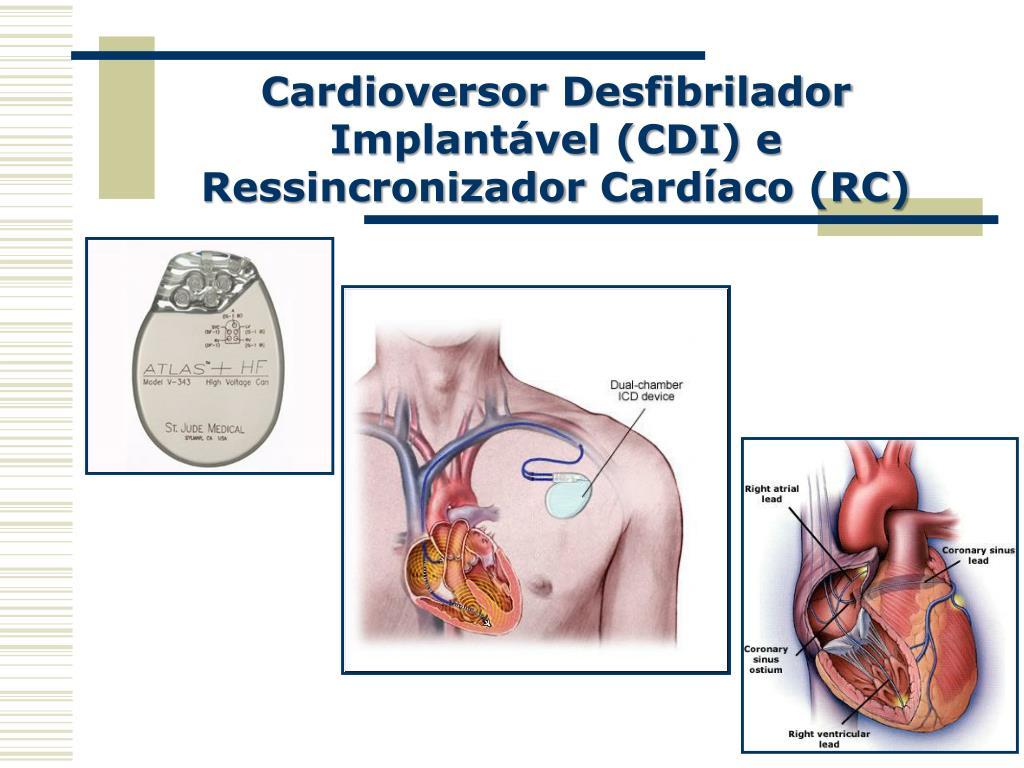 Cardioversor