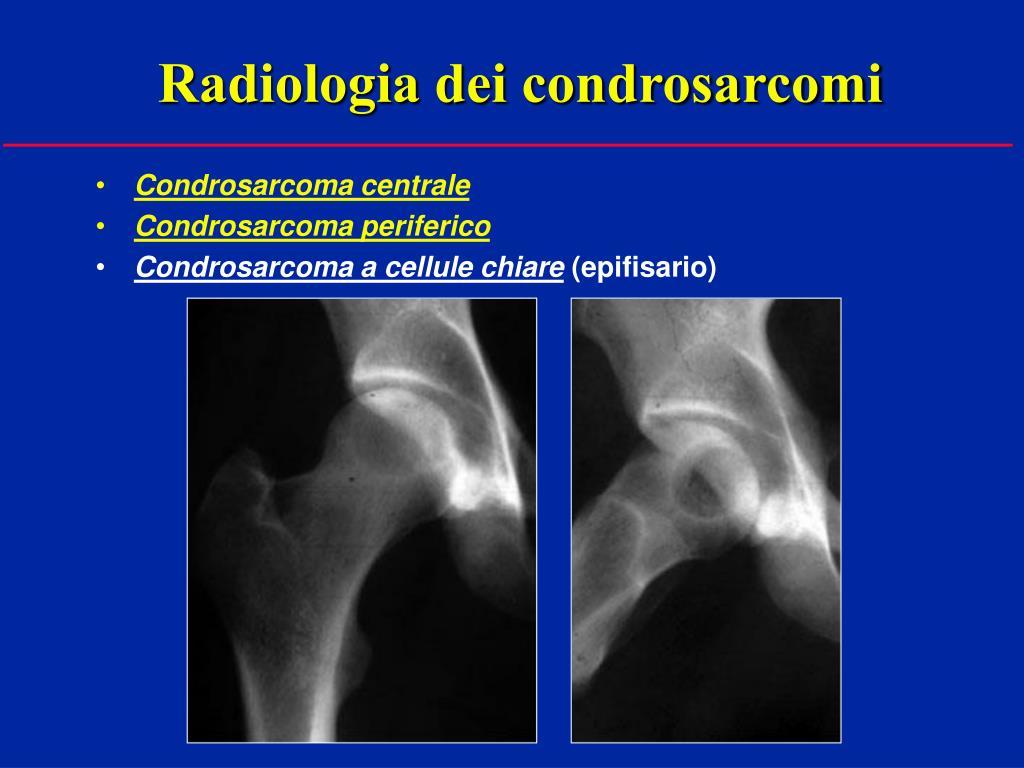 Radiologia dei condrosarcomi