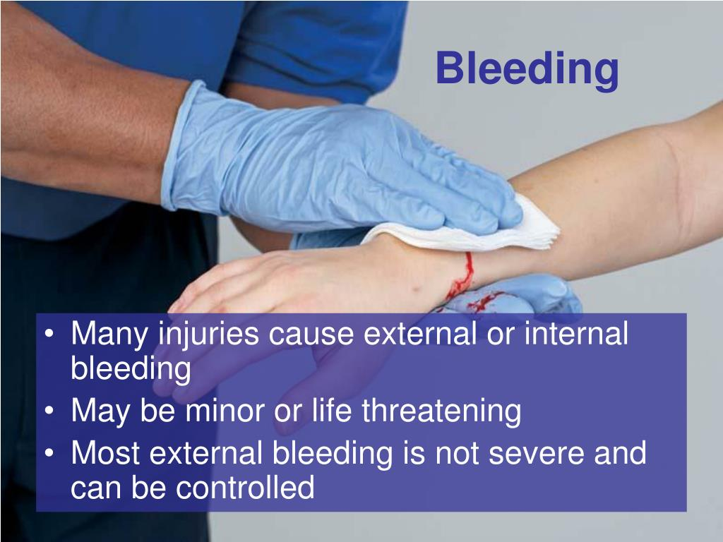 internal bleeding Internal bleeding, sometimes referred to as internal hemorrhage, occurs when an individual loses blood from the vascular system, into a body space or cavit.