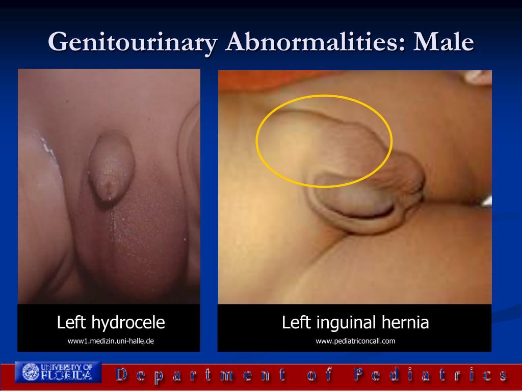 Genitourinary Abnormalities: Male