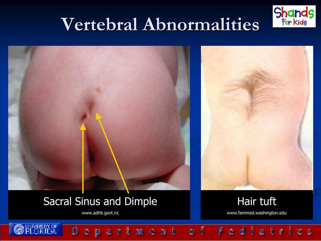 Vertebral Abnormalities