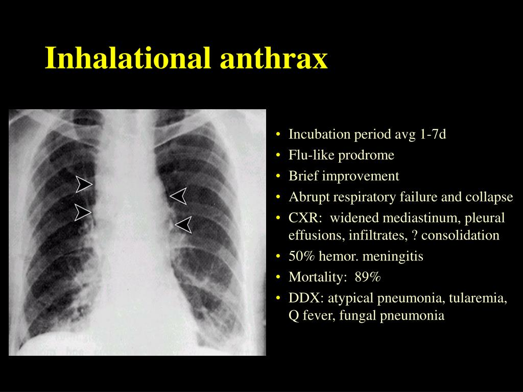 Inhalational anthrax