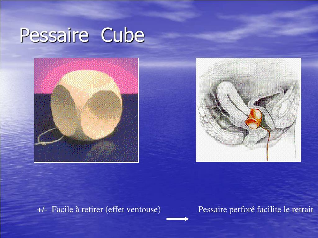 Pessaire  Cube