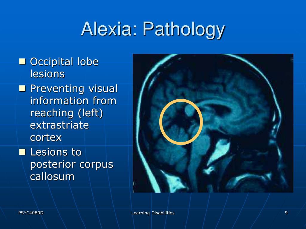 Alexia: Pathology