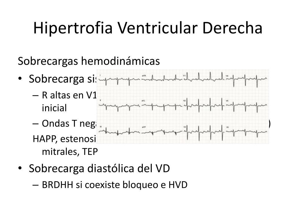 Hipertrofia Ventricular Derecha