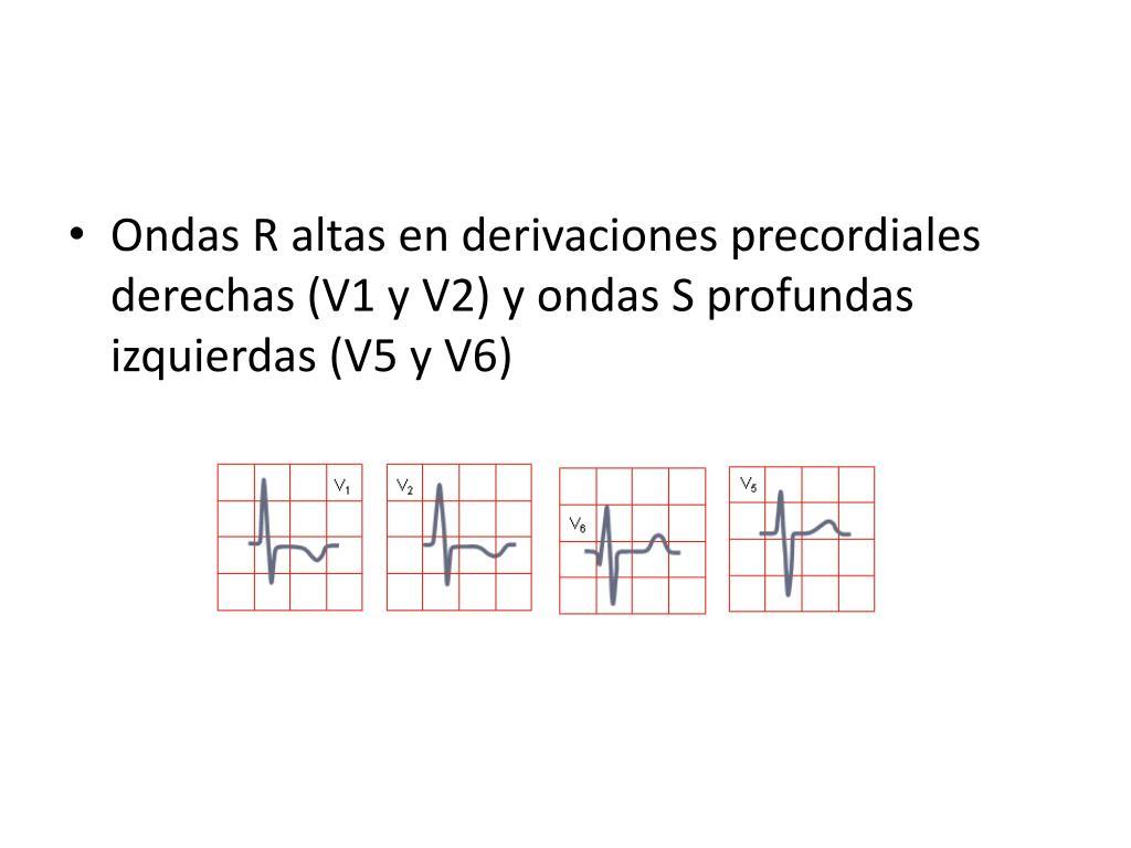 Ondas R altas en derivaciones precordiales derechas (V1 y V2) y ondas S profundas izquierdas (V5 y V6)