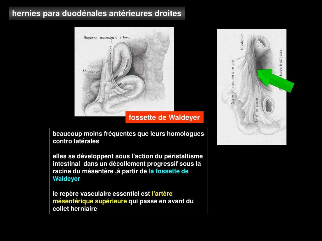 hernies para duodénales antérieures droites