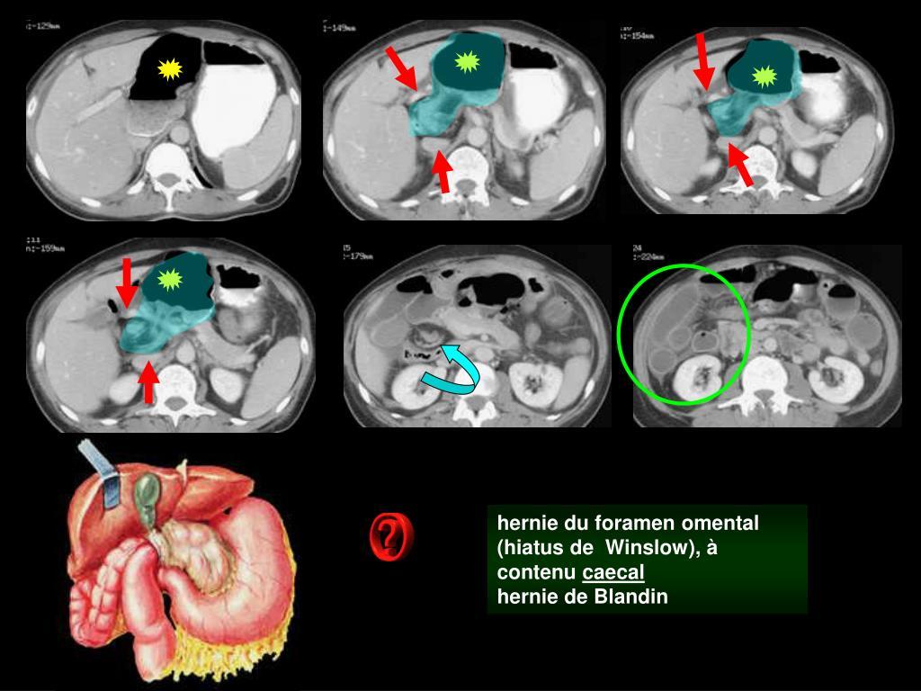 hernie du foramen omental (hiatus de  Winslow), à contenu