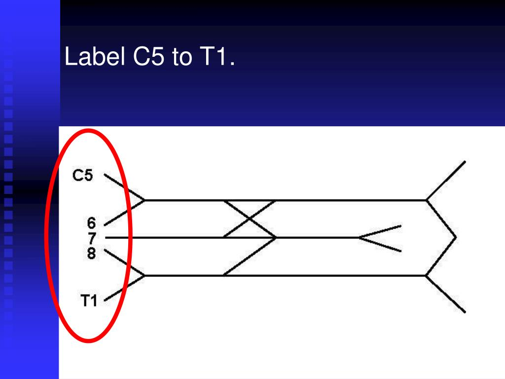 Label C5 to T1.