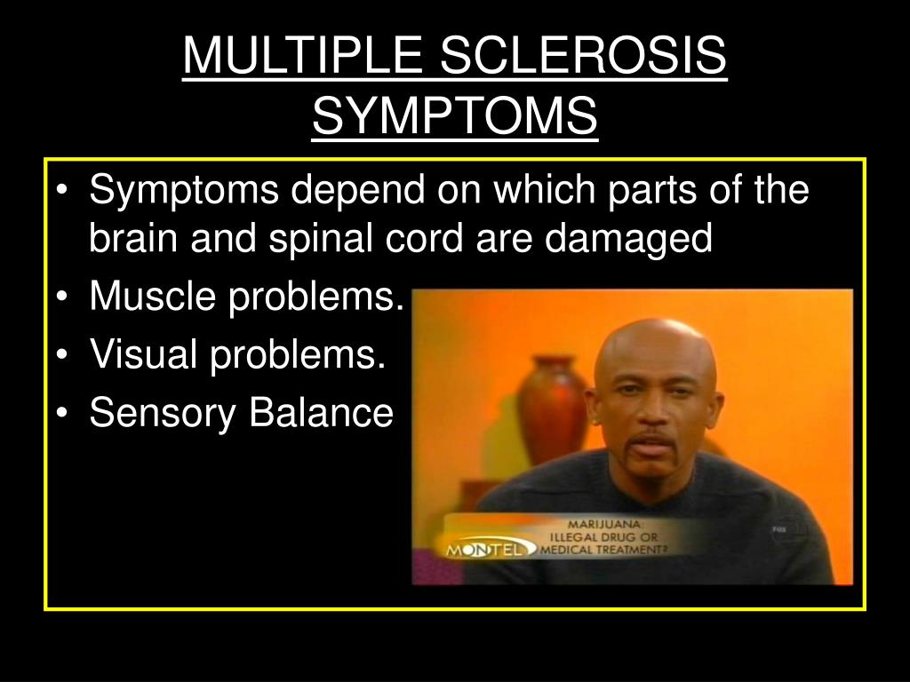 an examination of multiple sclerosis Multiple sclerosis (ms) symptoms, causes, treatment, life expectancy  medical history, a physical exam, and sometimes an mri or ct scan are required to diagnose .