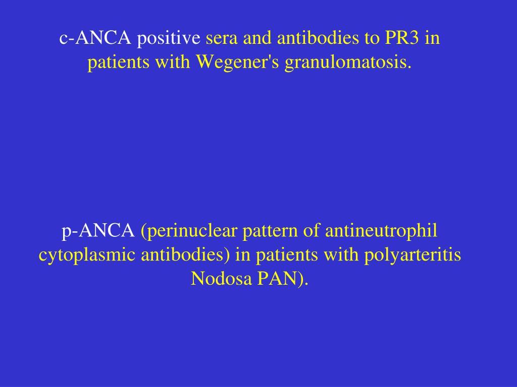 c-ANCA positive