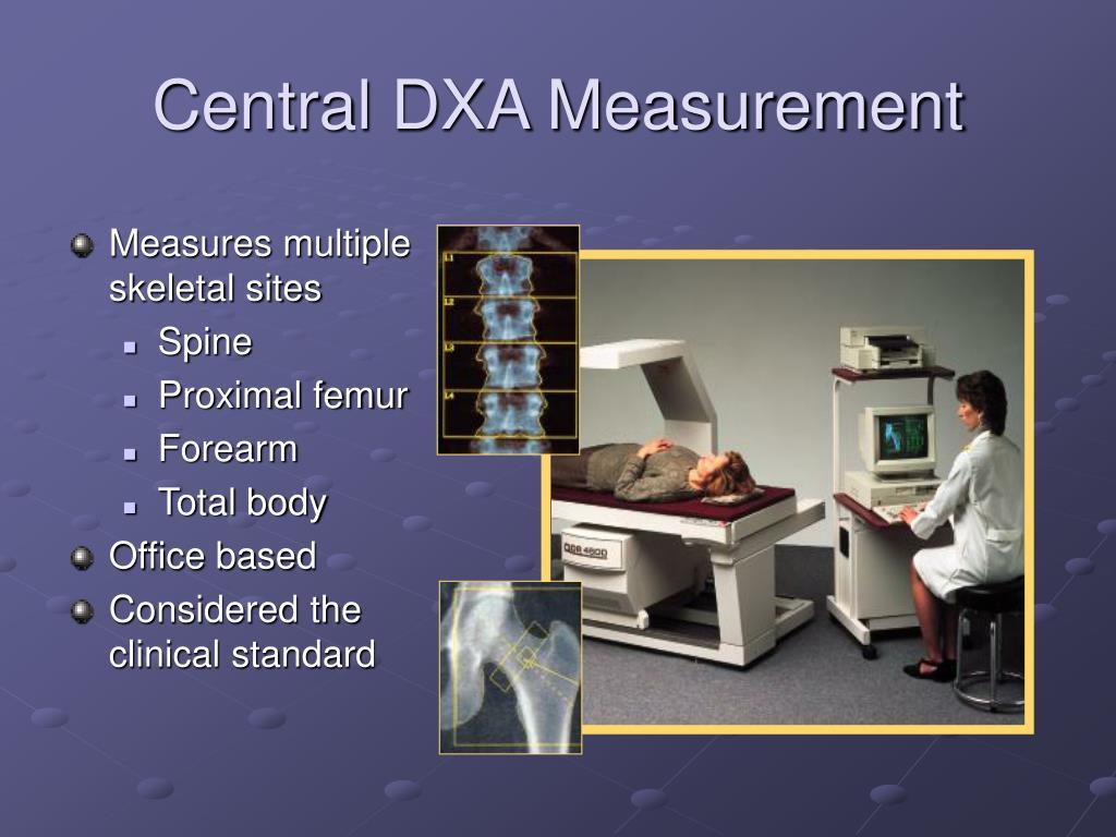 Central DXA Measurement