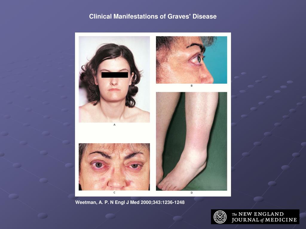 Clinical Manifestations of Graves' Disease