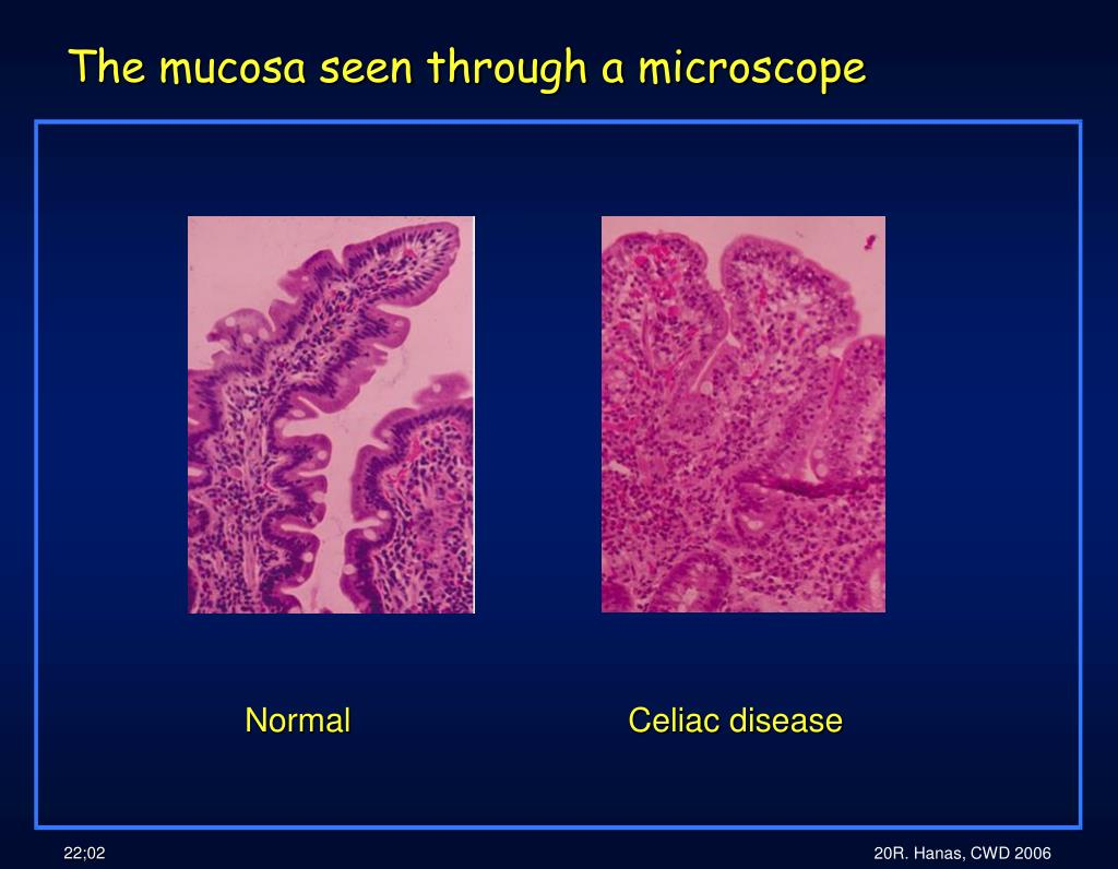 The mucosa seen through a microscope