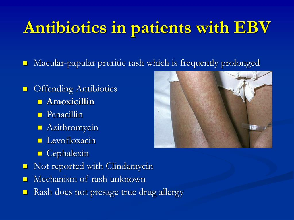 Antibiotics in patients with EBV