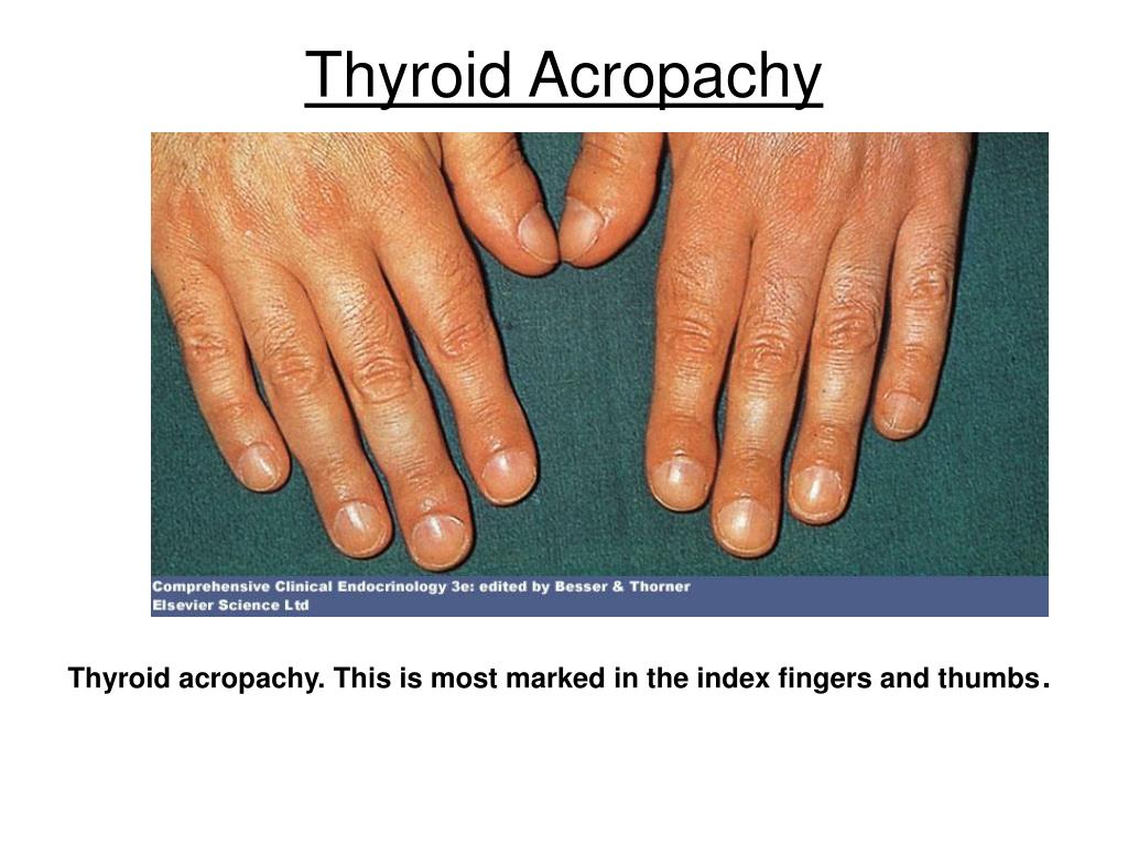 Thyroid Acropachy