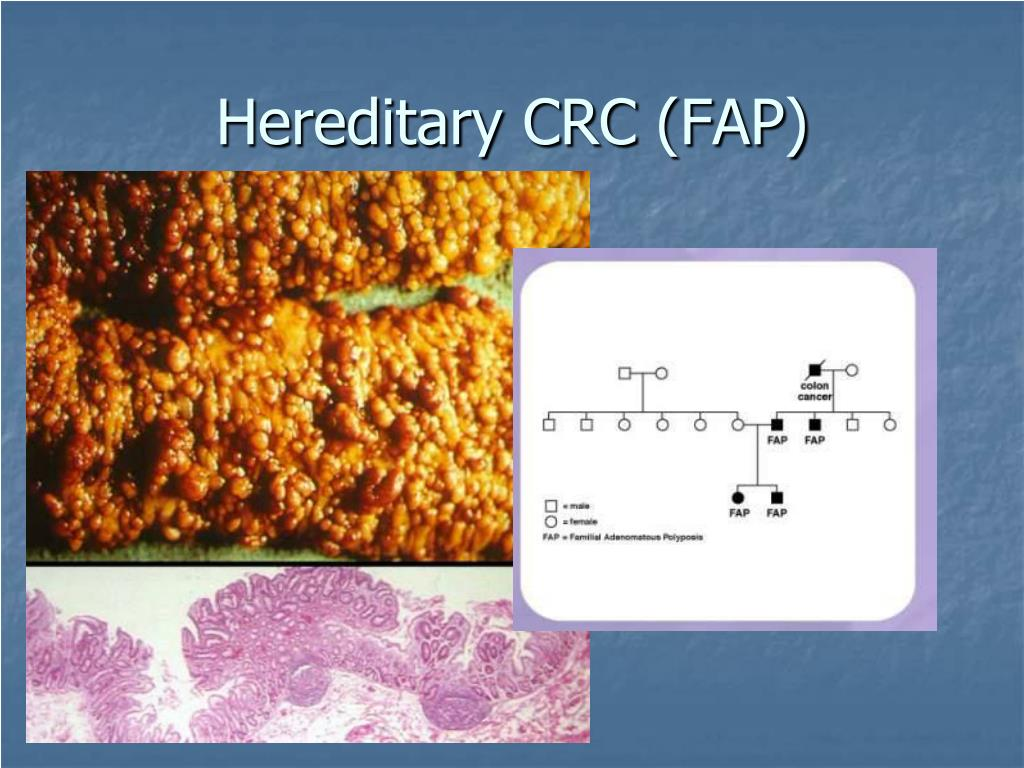 Hereditary CRC (FAP)