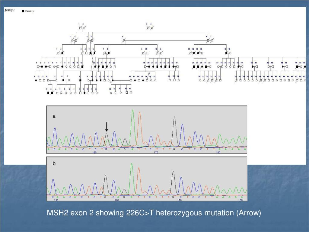 MSH2 exon 2 showing 226C>T heterozygous mutation (Arrow)