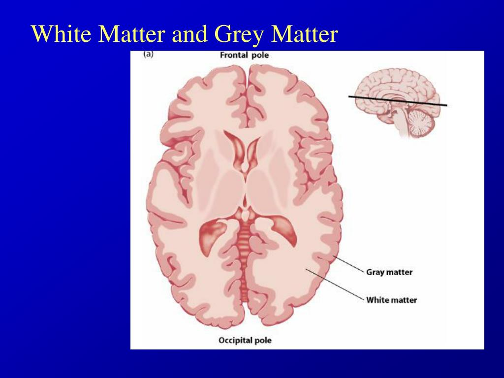White Matter and Grey Matter
