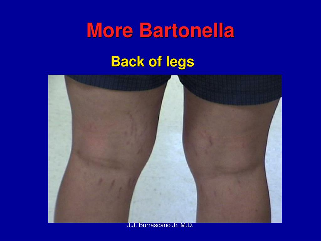 More Bartonella